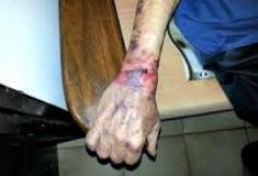 Violência contra o idoso que hoje representa 11% da população brasileira