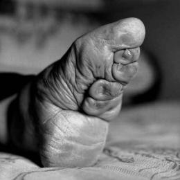 A dolorida e milenar tradição chinesa dos pés-de-lótus
