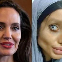 Mulher faz 50 plásticas para ficar igual Angelina Jolie e é atacada na web