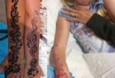 Tatuagem de hena provoca queimaduras graves