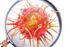 Um exame de sangue que detecta até 8 tipos de câncer