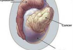 5 sintomas diferentes para câncer de testiculo