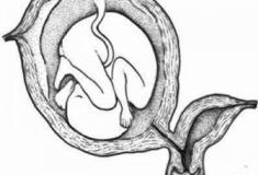 Útero bicorno o que é? Implicações na gravidez (Anomalias Mullerianas)