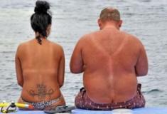 20 imagens mostrando que o sol pode ser o seu pior inimigo