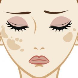 10 dúvidas sobre manchas na pele respondidas por médicos