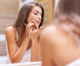 Conheça 4 causas comuns da acne e como tratá-las