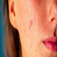 8 tratamentos caseiros para acabar com as espinhas e suas manchas