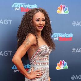 Mel B, das Spice Girls, sofre acidente e passa por cirurgia de emergência