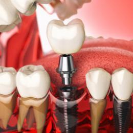 Tire as suas dúvidas sobre o implante dentário