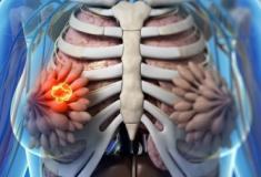 Novo remédio para câncer de mama eleva taxa de sobrevivência