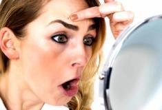 Caspa na sobrancelha existe? Sim, e pode causar descamação, coceira e irritação