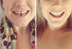 Confira 20 transformações incríveis de pessoas que tinham dentes fora do lugar