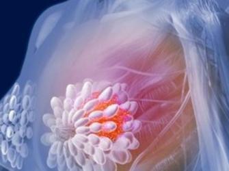 Vacina contra o câncer de mama pode estar para breve