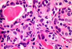 Descoberta imunológica pode tratar todos os tipos de câncer