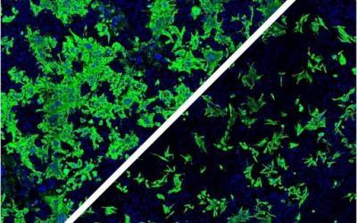 Cientistas podem ter identificado o que torna Sars-Cov-2 tão infeccioso